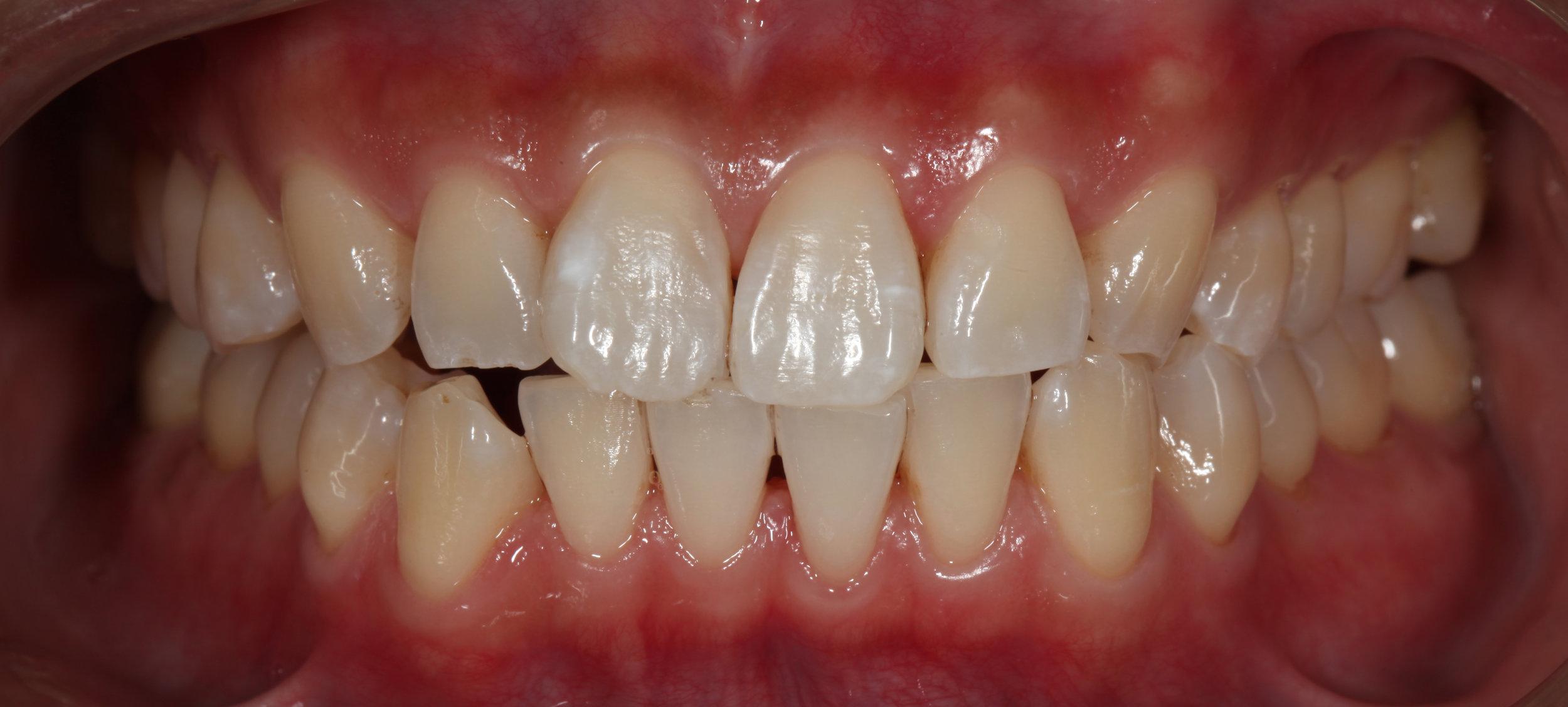 AlexNguyenDDS.Front Teeth1