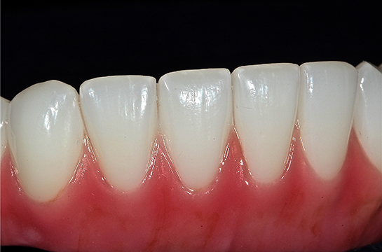 Solid material stained to replicate details found in gum and teeth.  In the mouth this prosthesis looks indistinguishable as real teeth or man-made.