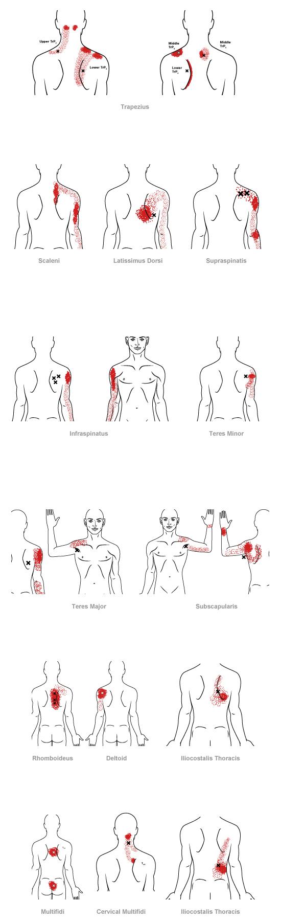 midback myofascial pain.jpg