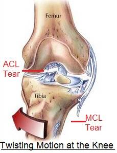 twisted knee.jpg