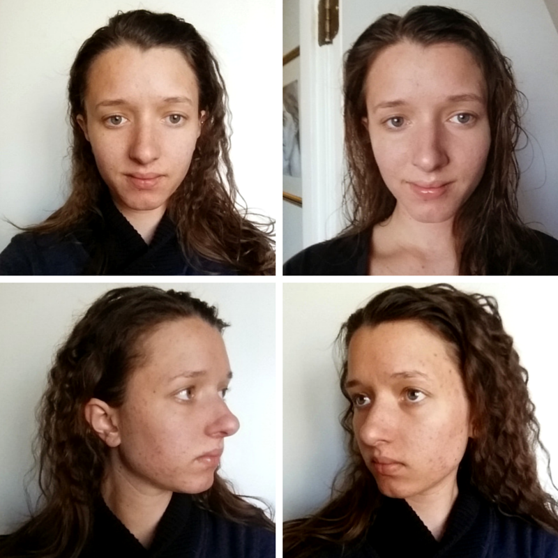 April 28th, 2015: I am wearing absolutely NO makeup except in the picture on the top right, where I have a sheer layer of Cover FX Foundation on to smooth over scarring. All spots you see are discoloration, and are smooth. {Please forgive the ridiculous hair; I'd just taken out braids from a wedding.}