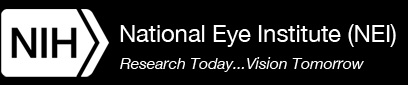 The National Eye Institute (US site)