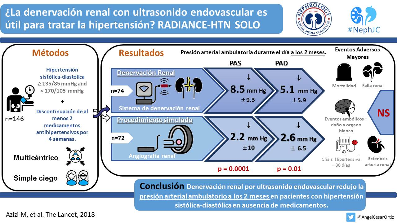Denervación renal por ultrasonido endovascular para tratar hipertensión. RADIANCE-HTN SOLO. Lancet 2018 .jpg