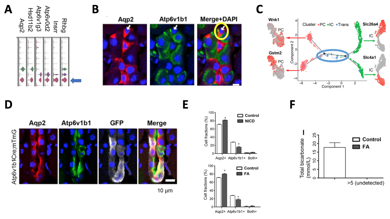 """#NephJC Figure 4.   (A) Adapted from Susztak Figure 1B – zooming in on violin plots of Clusters 6-8. (B) Adapted from Susztak Figure 3C. Yellow circle marks a cell expressing both Aqp2 (principal cell marker) and Atp6v1b1 (intercalated cell marker). This cell is considered a """"double positive"""" transitional cell. (C) Adapted from Susztak Figure 3G. Monocle pseudotime trajectory shows the relationship of the different cell clusters to each other, with the novel cluster 8 being a transitional cell type between principal (pink) and intercalated (green) cells. (D) Adapted from Susztak Figure 3I. ATP6ase lineage tag is marked by GFP. Cells with green, red, and white are transitional cells. (E) Adapted from Susztak Figure 4C and E. More principal cells were present in cell fractions. (F) Adapted from Susztak Figure 4I. Folic acid treated mice had undetectable serum bicarbonate levels."""
