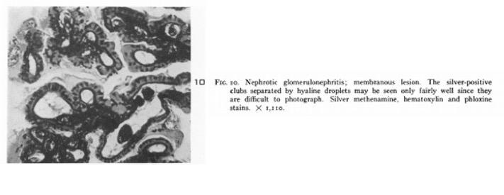 From  Jones DB,  American Journal of Pathology , 1957 .
