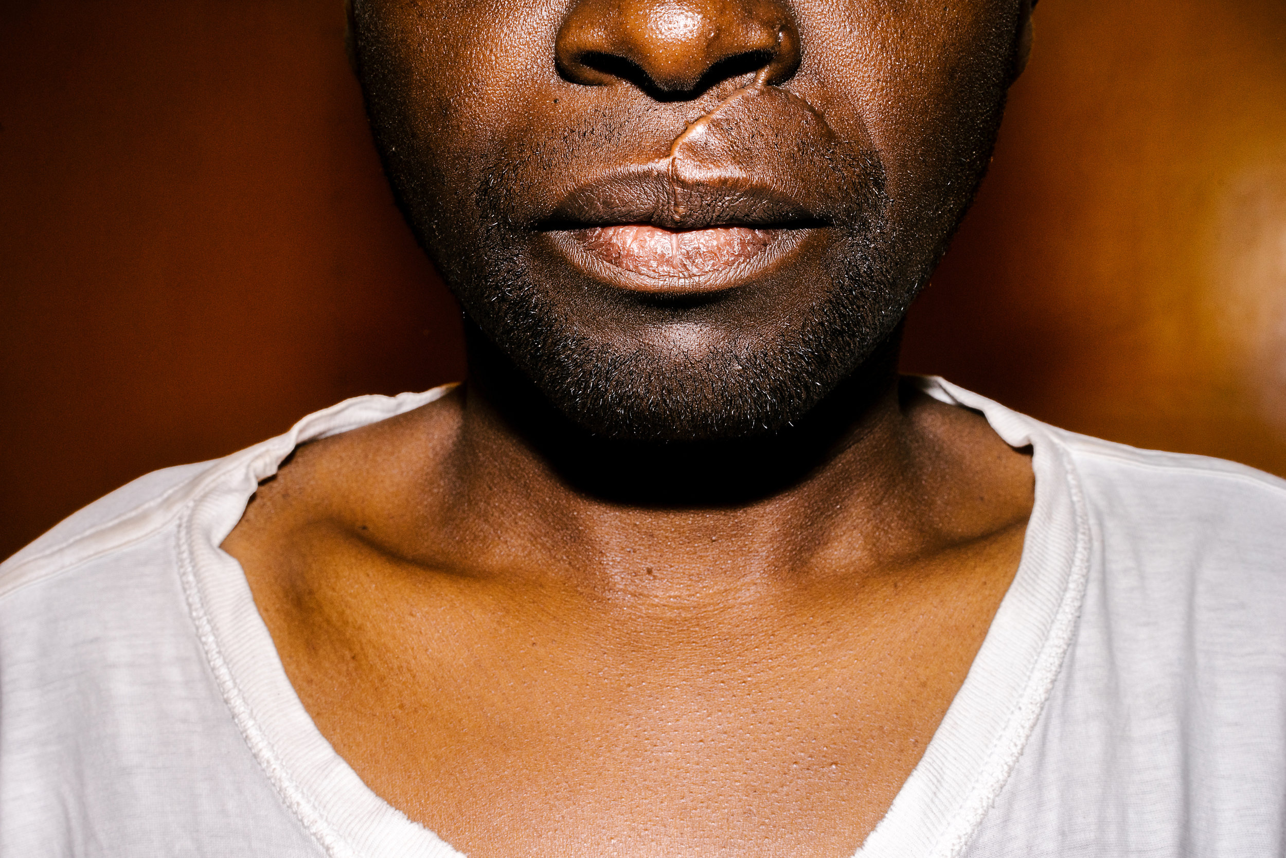 Soon after arriving in Kenya, Sulait was attacked by seven men with machetes. Here, he poses for a portrait in the apartment he shared with his boyfriend, with one scar from the attack clearly visible. Others on his face and chest are not seen. Both he and his boyfriend have since been resettled in the United States.