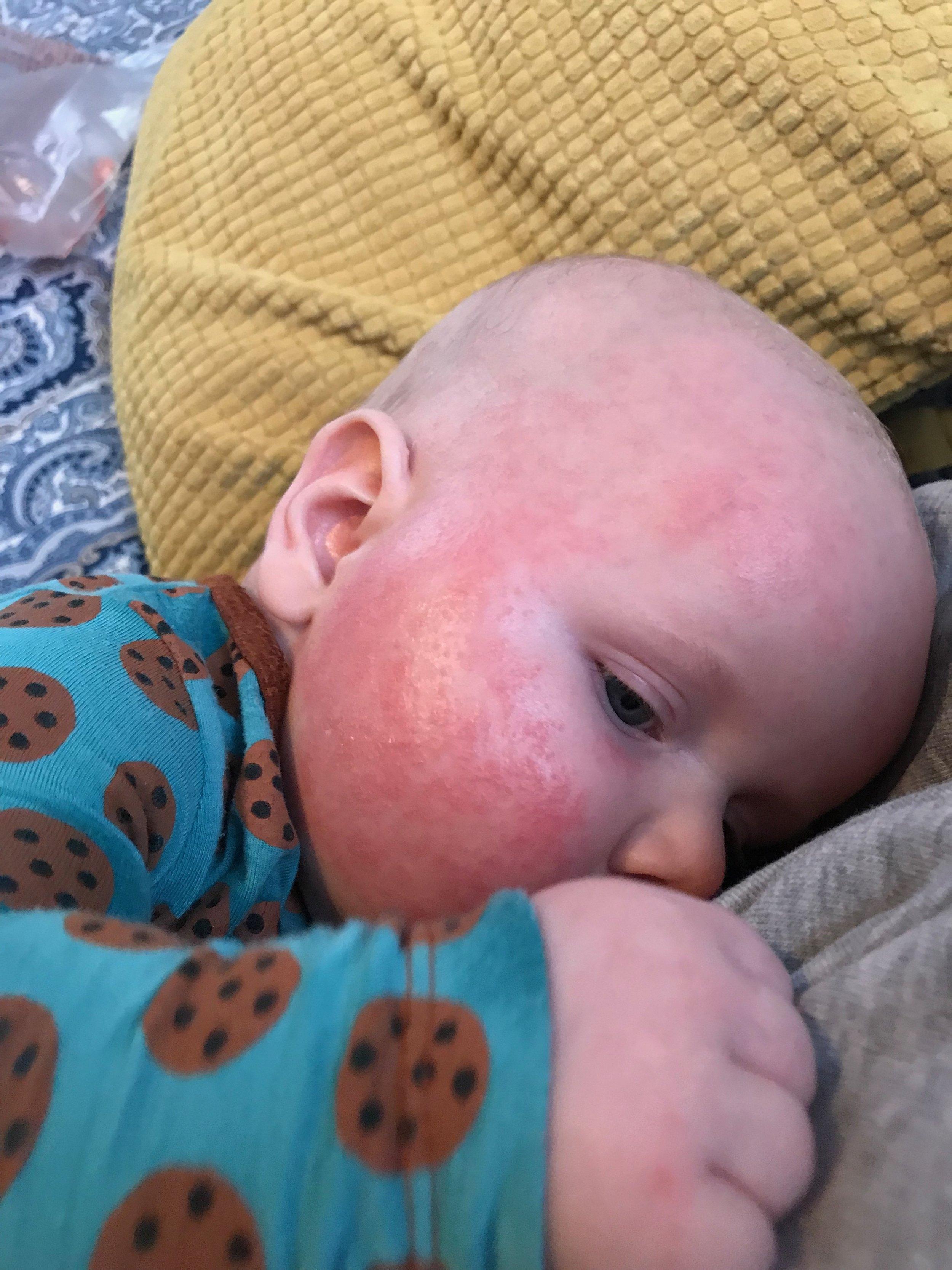 baby face rash