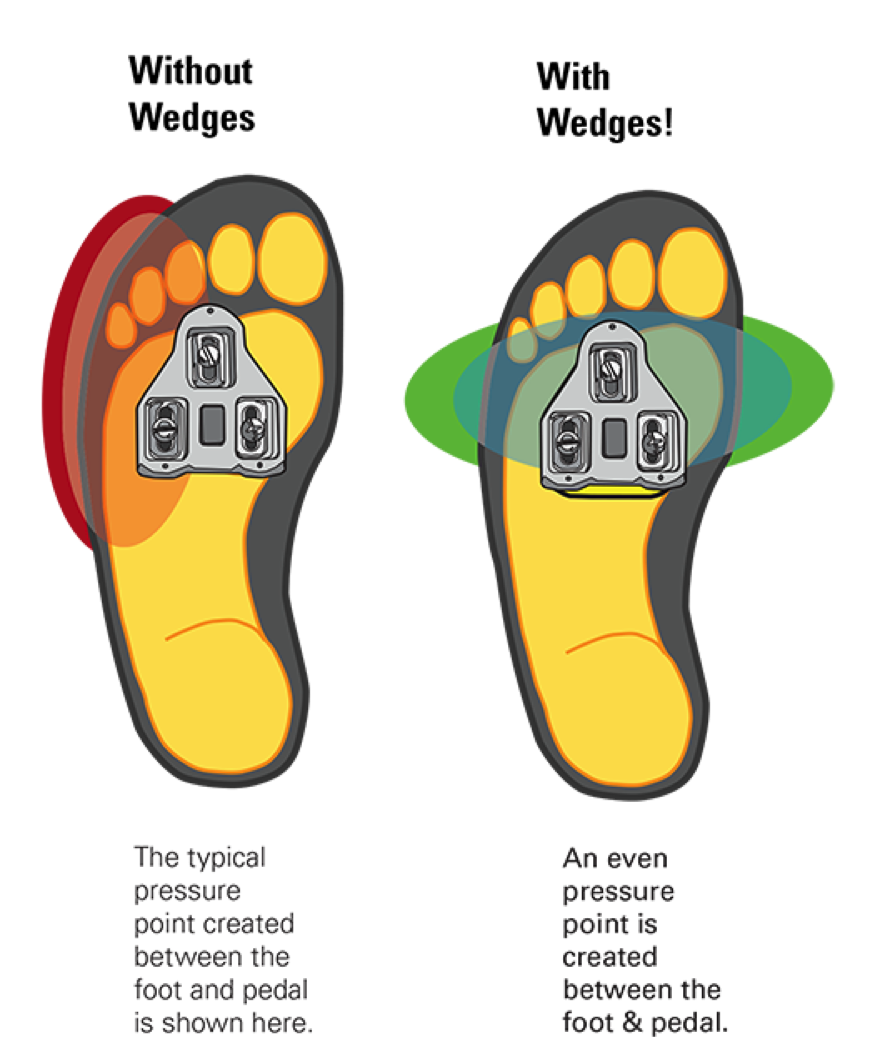 Insoles, wedges \u0026 shims – What I've