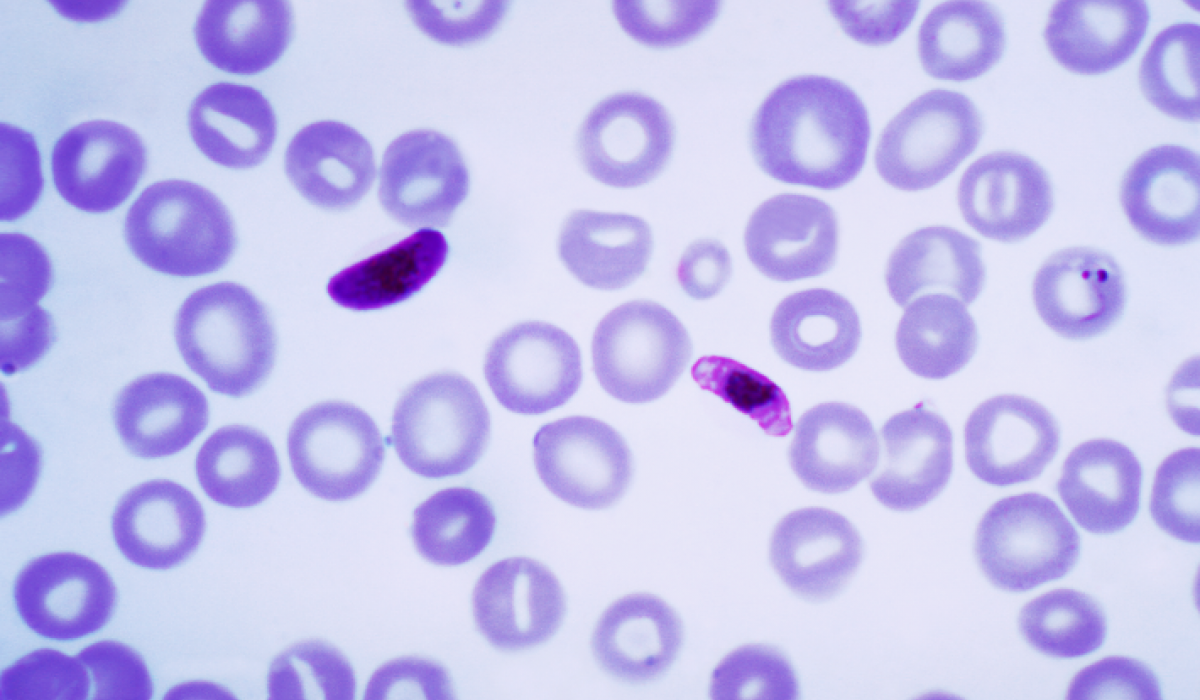A magnified drop of infected blood — the plasmodium parasite amongst red blood cells