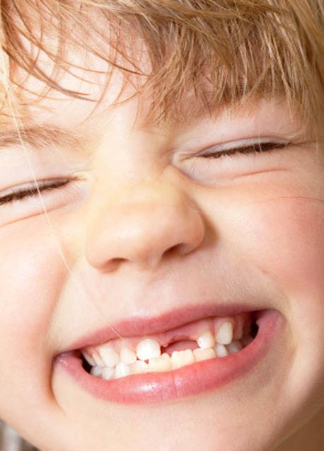 © Dr Amrin Sydney Dentist (02) 8283 6493