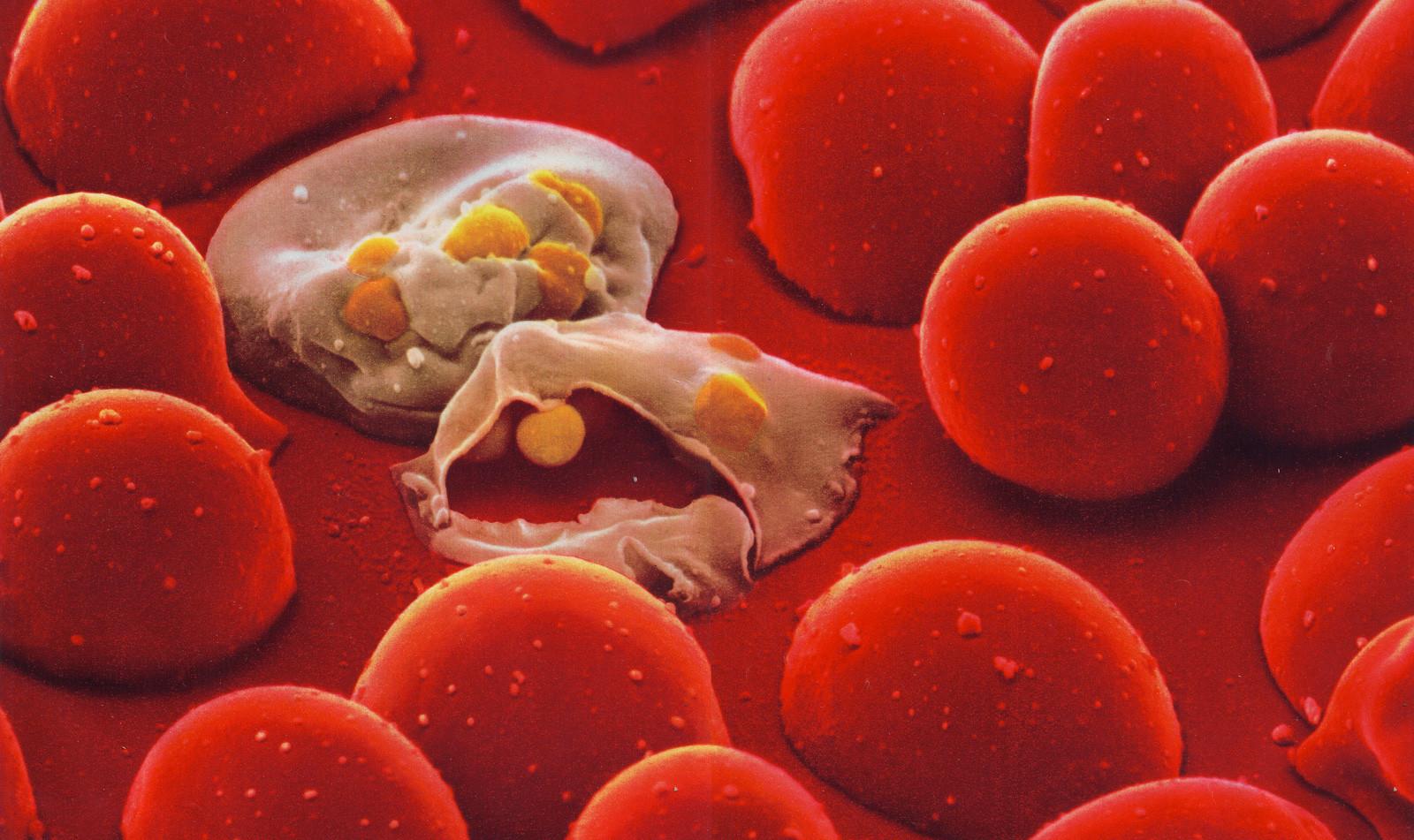 blood_cells.jpg