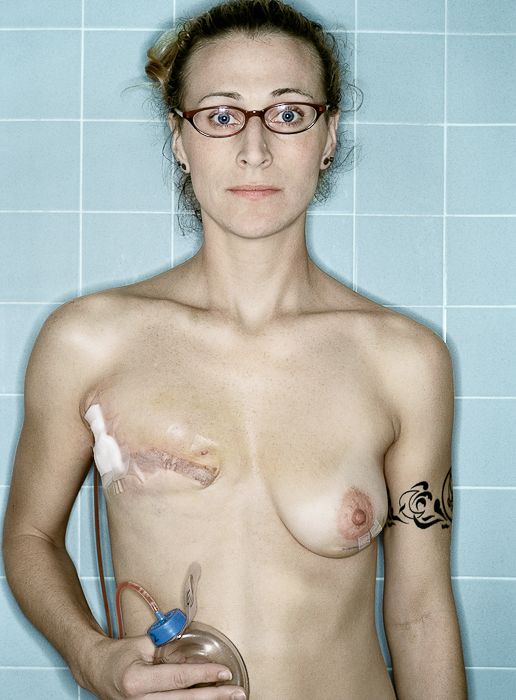 Self Portrait, Post-Mastectomy, 12.2005