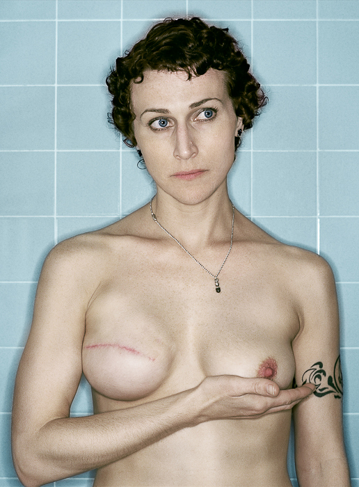 Self Portrait, Post-Reconstruction, 02.2007