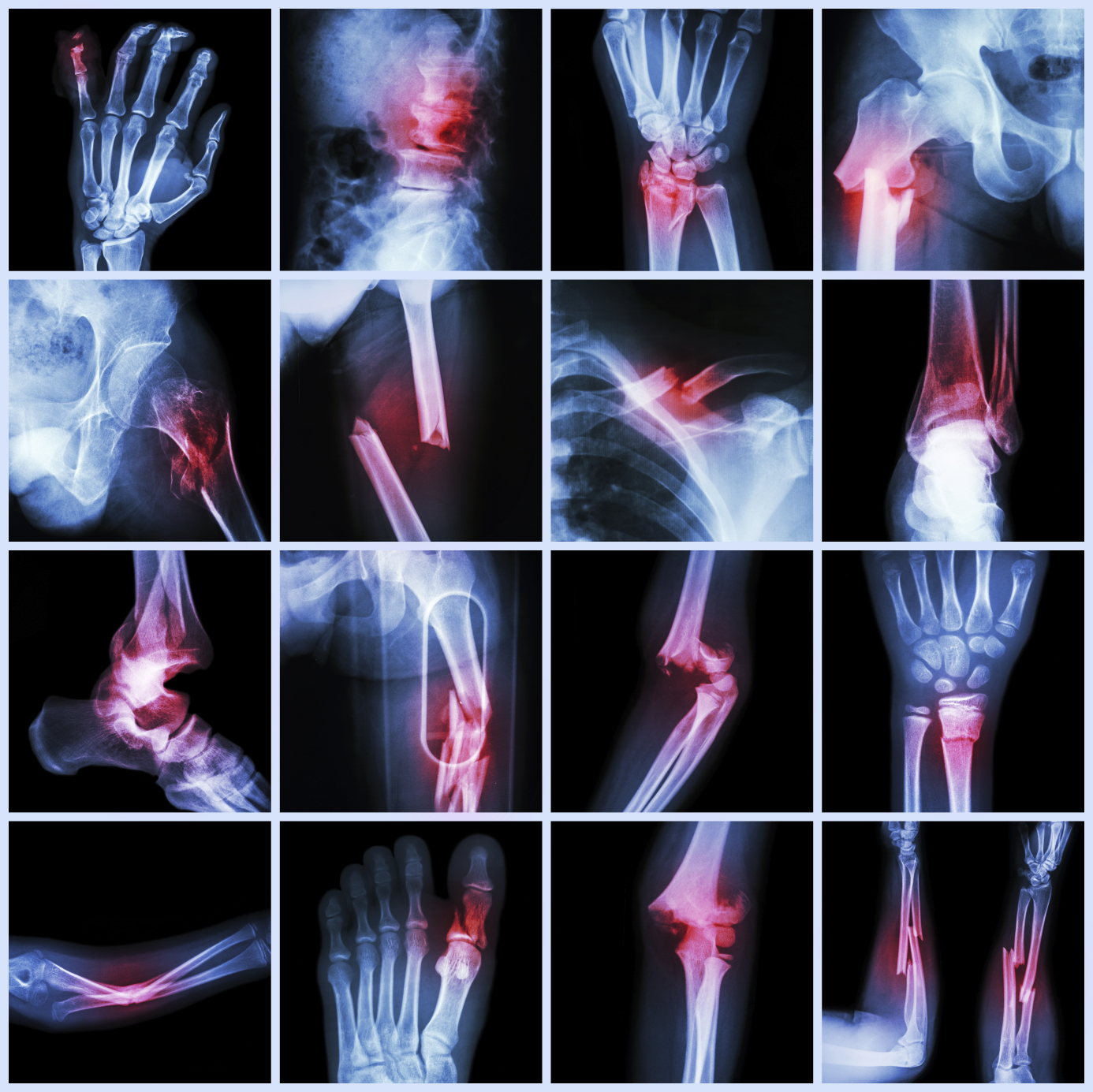 Biomechanical Engineering   What do injuries reveal about an accident?    Learn More
