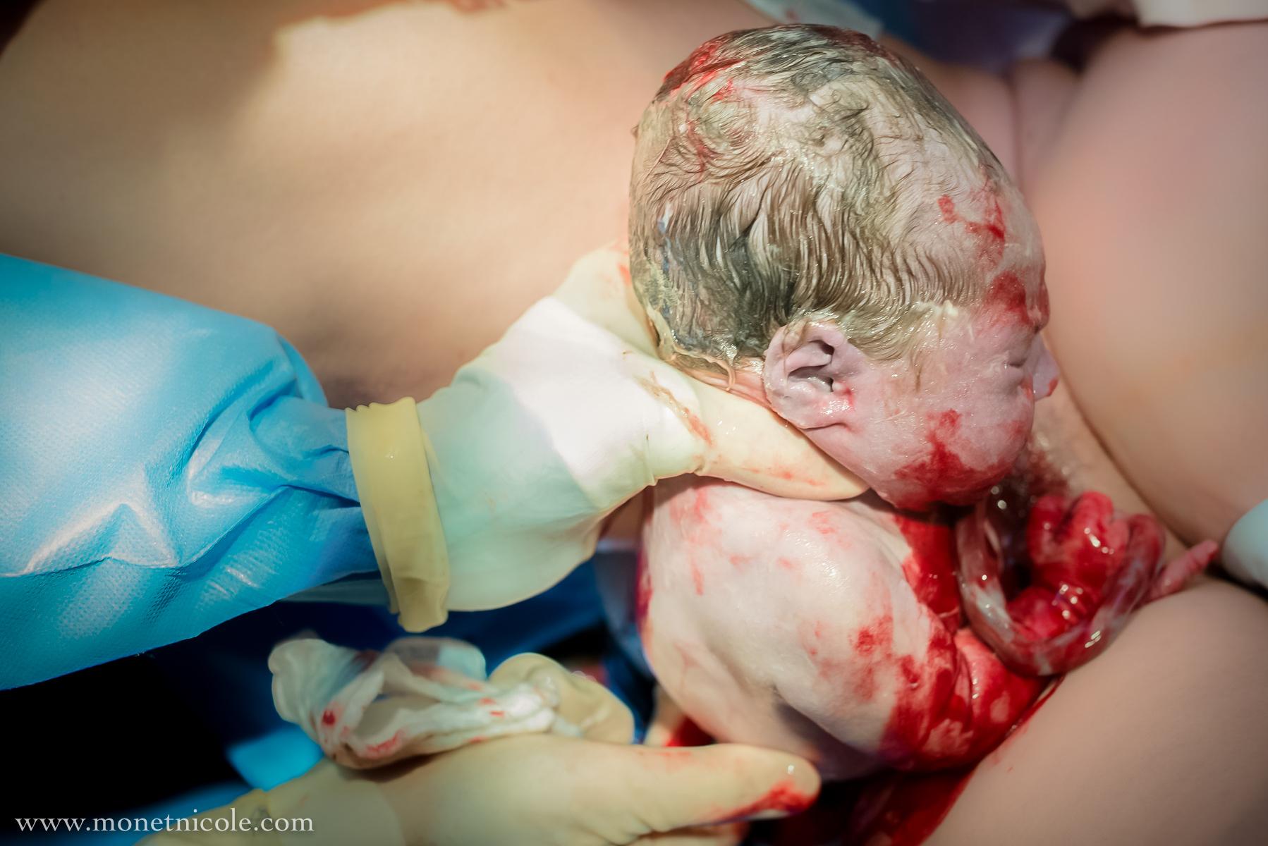 Denver-birth-photography-hypnobirthing-crowning