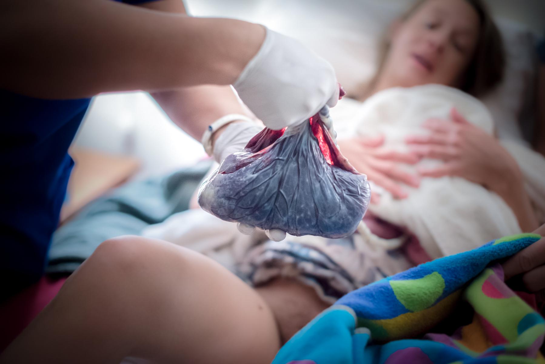 Colorado-springs-birth-photographer-home-birth-placenta