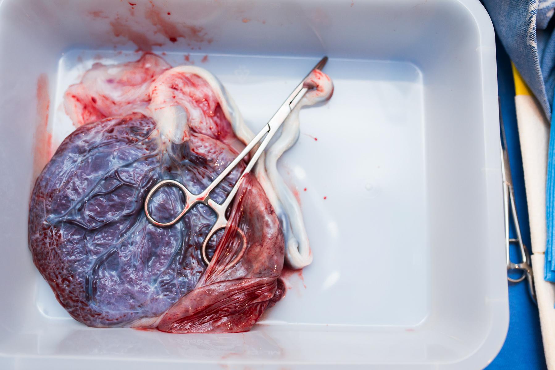 denver-birth-photographer-placenta-rose