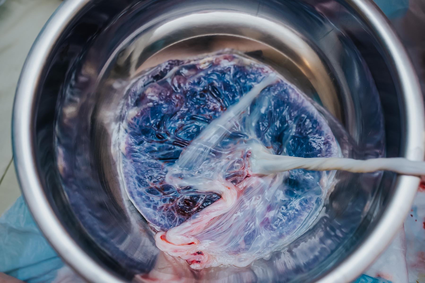Denver-Birth-Photographer-Placenta