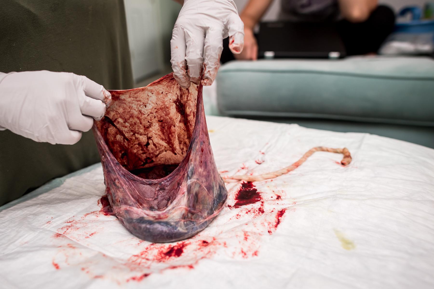placenta-denver-homebirth