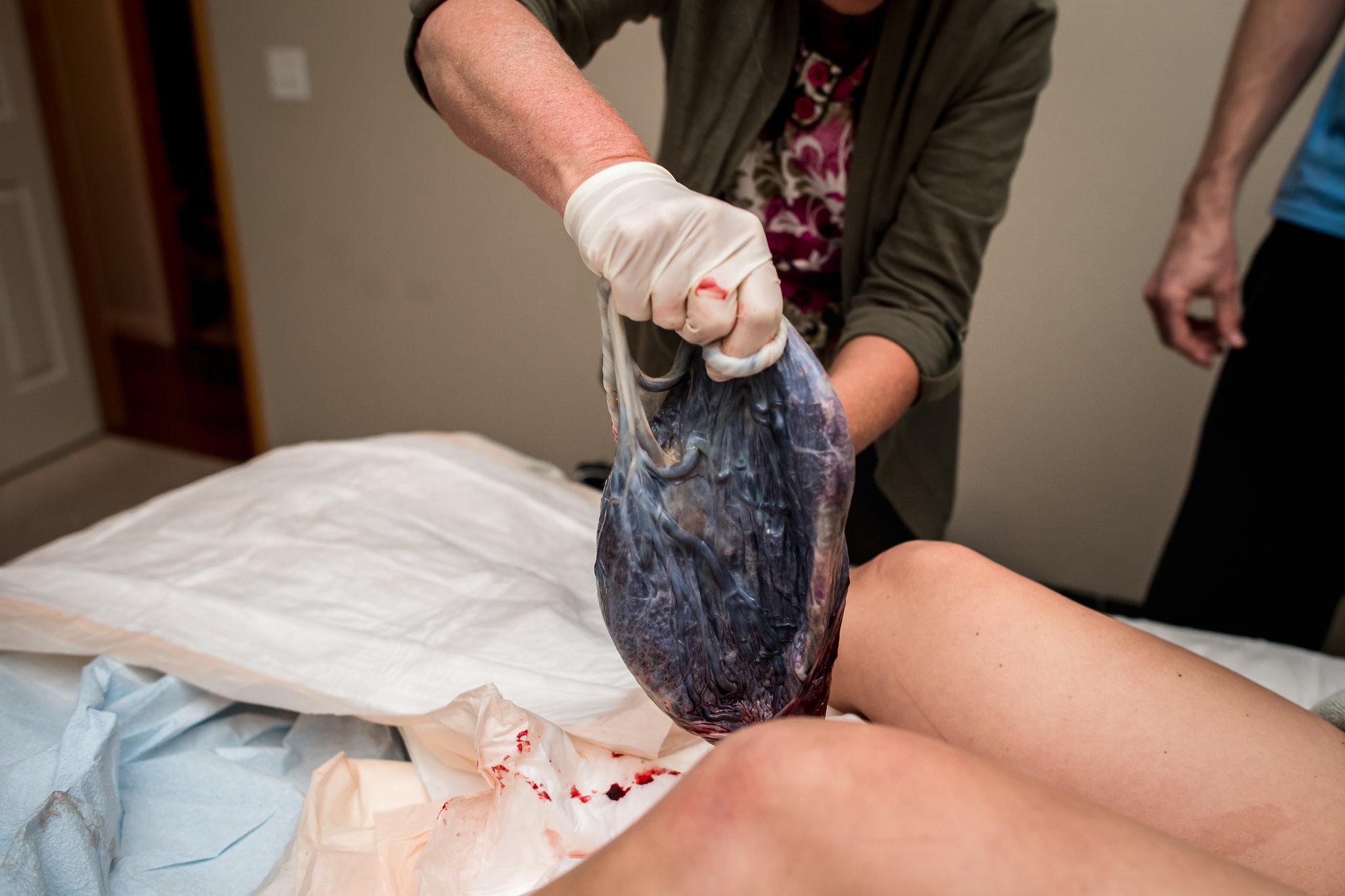 birth-of-placenta