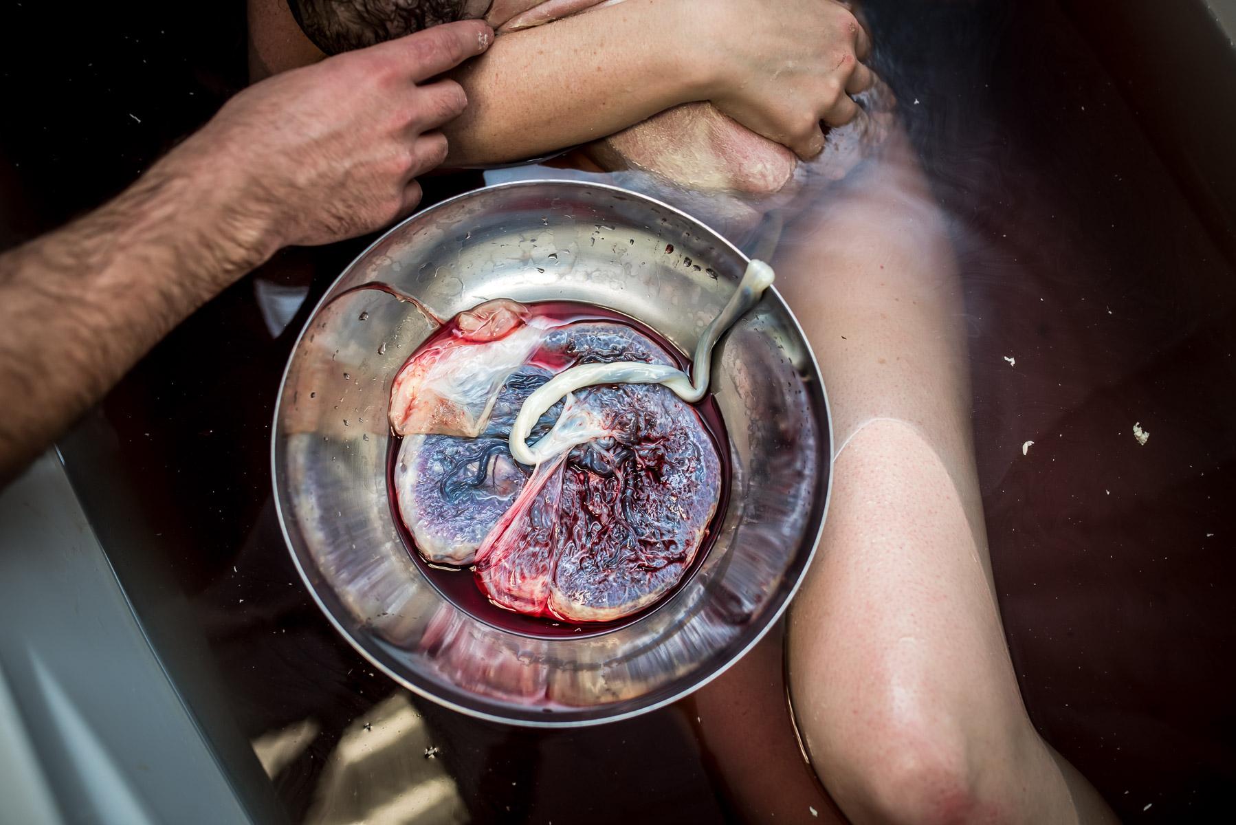 placenta-just-born