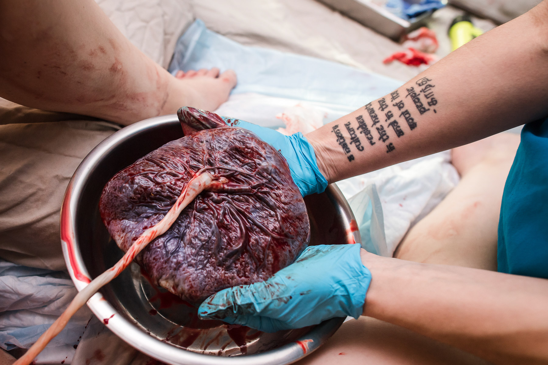 delivery-placenta