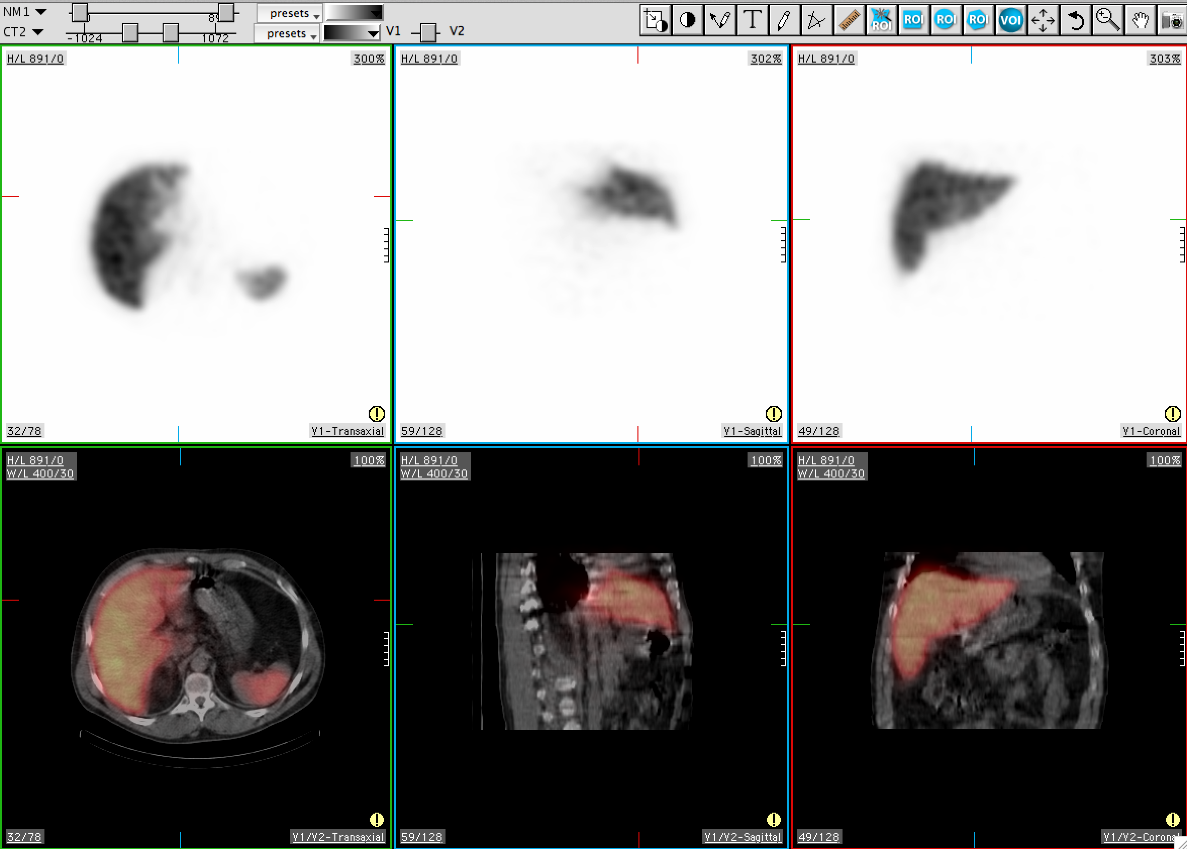 MedView SPECT CT