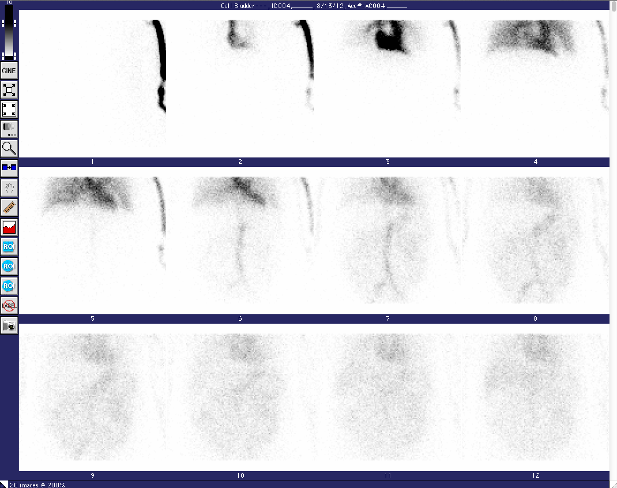 MedView Dynamic scan