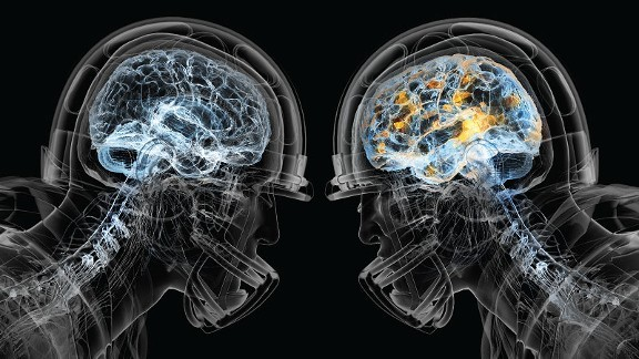 concussion brain image.jpg