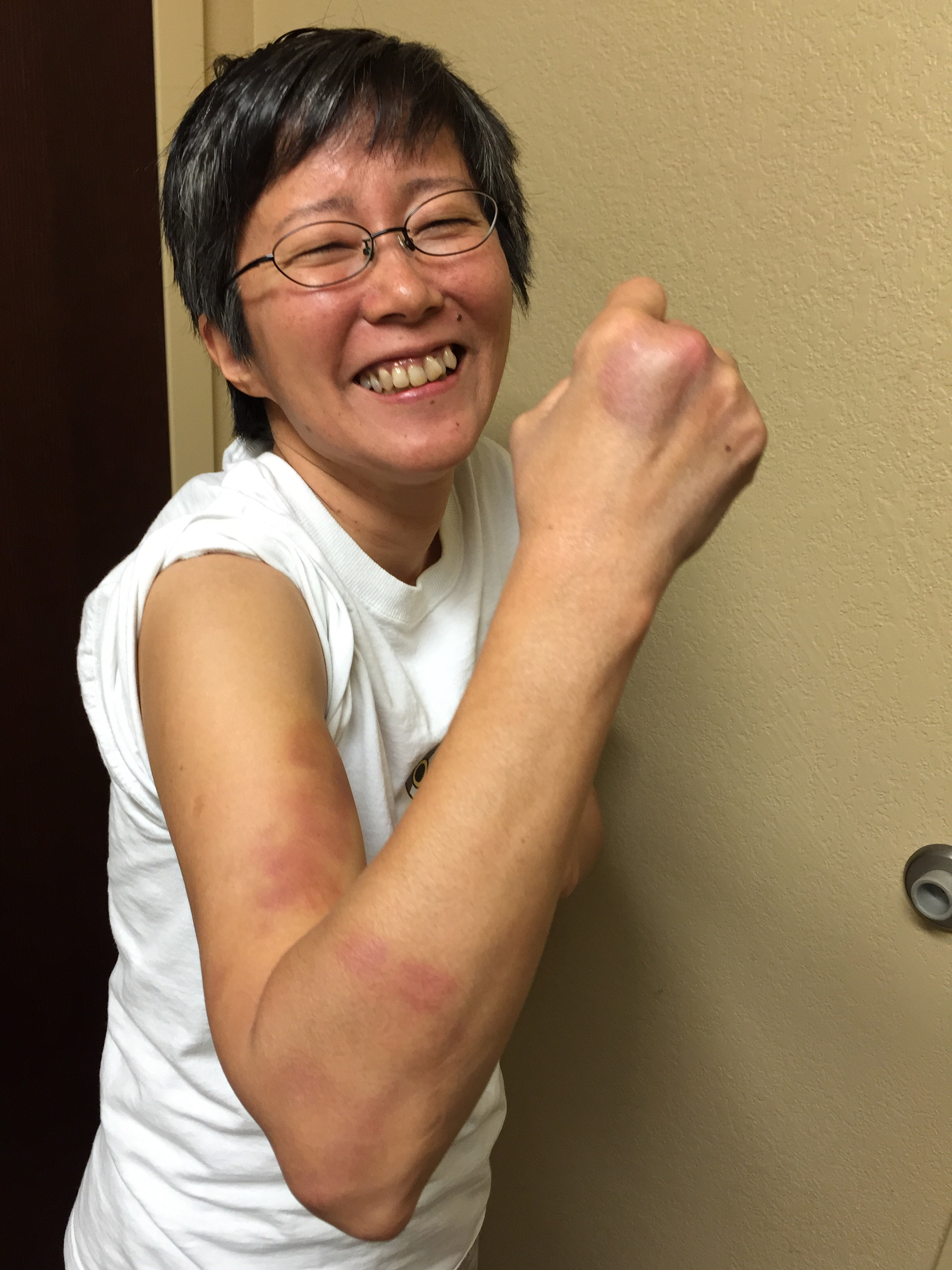 Reiko shows some of the bruises she received during practices.  Photo by Shishido.