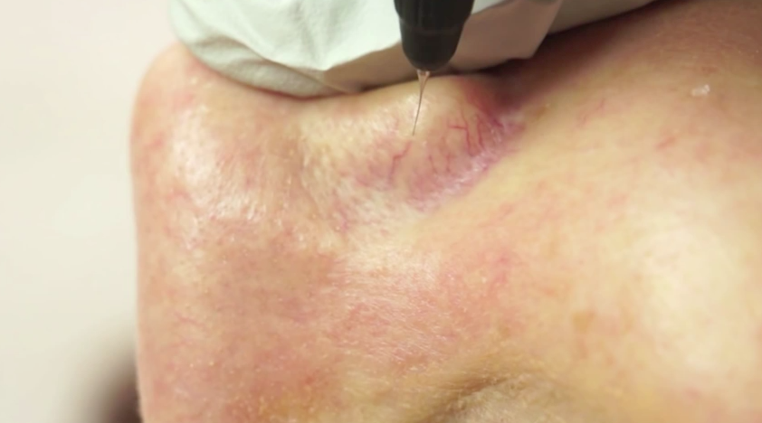 Facial veins being treated