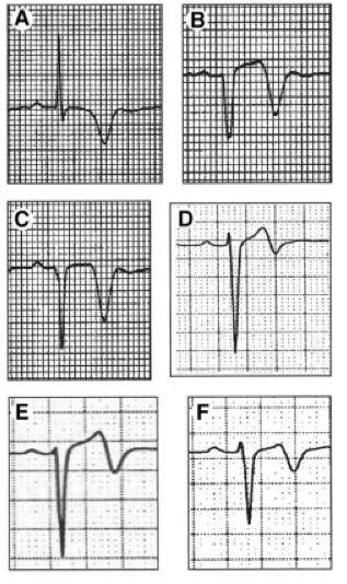 Rhinehardt J, Brady W, Perron A, Mattu A. Electrocardiographic Manifestations of Wellens' Syndrome. American Journal of Emergency Medicine. Nov 2002; 20(7):638-43.
