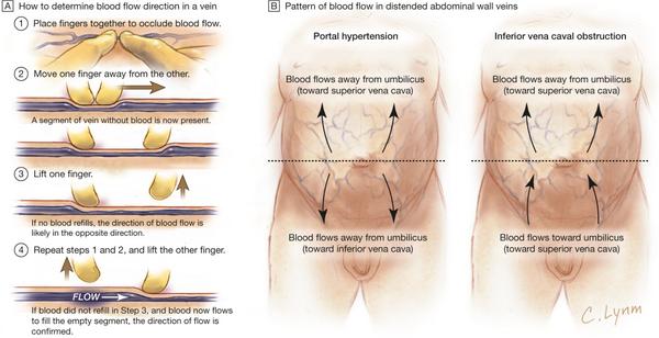 How to determine blood flow in a vein