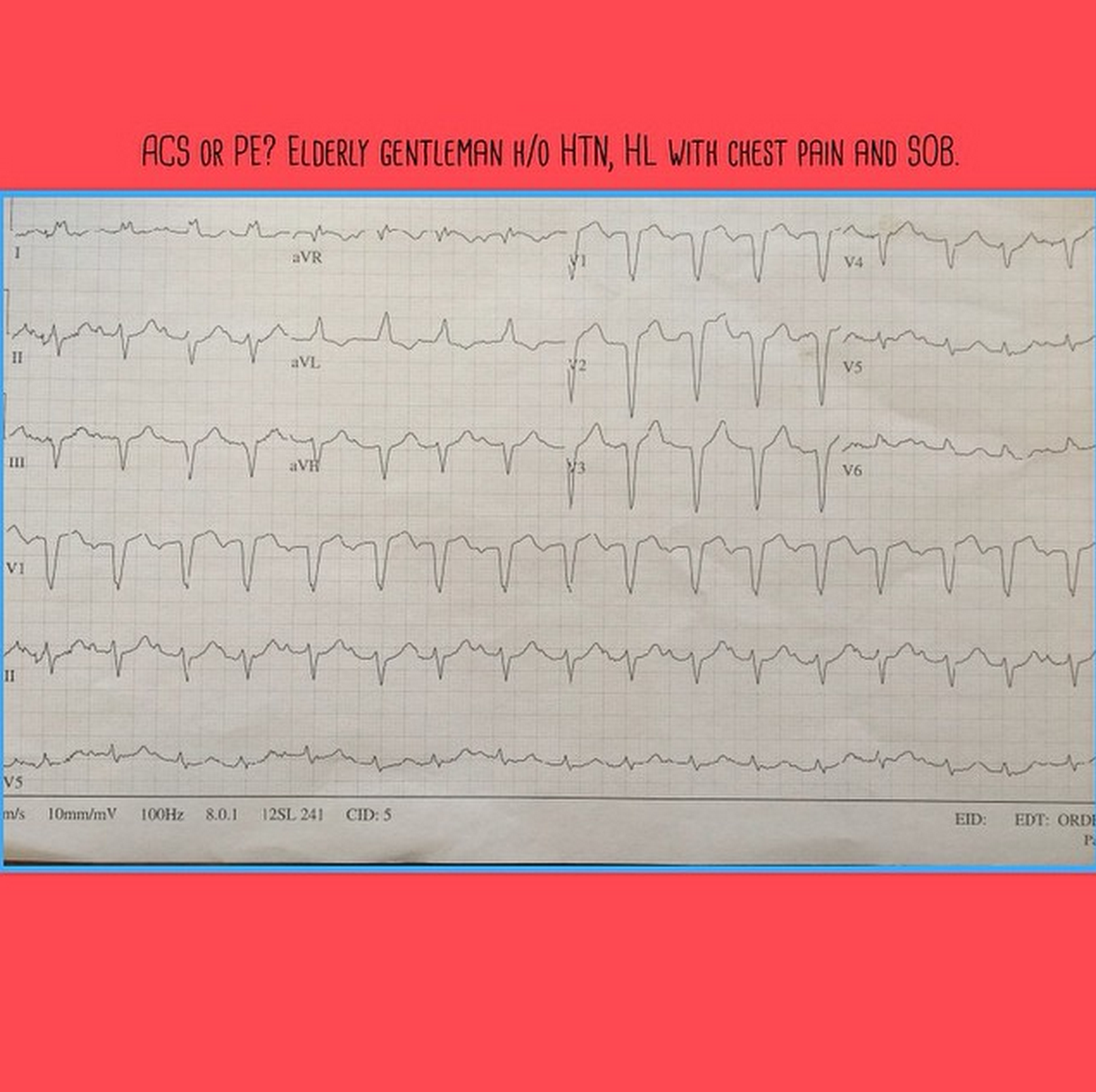 Elderly male with chest pain and SOB. What is your diagnosis?