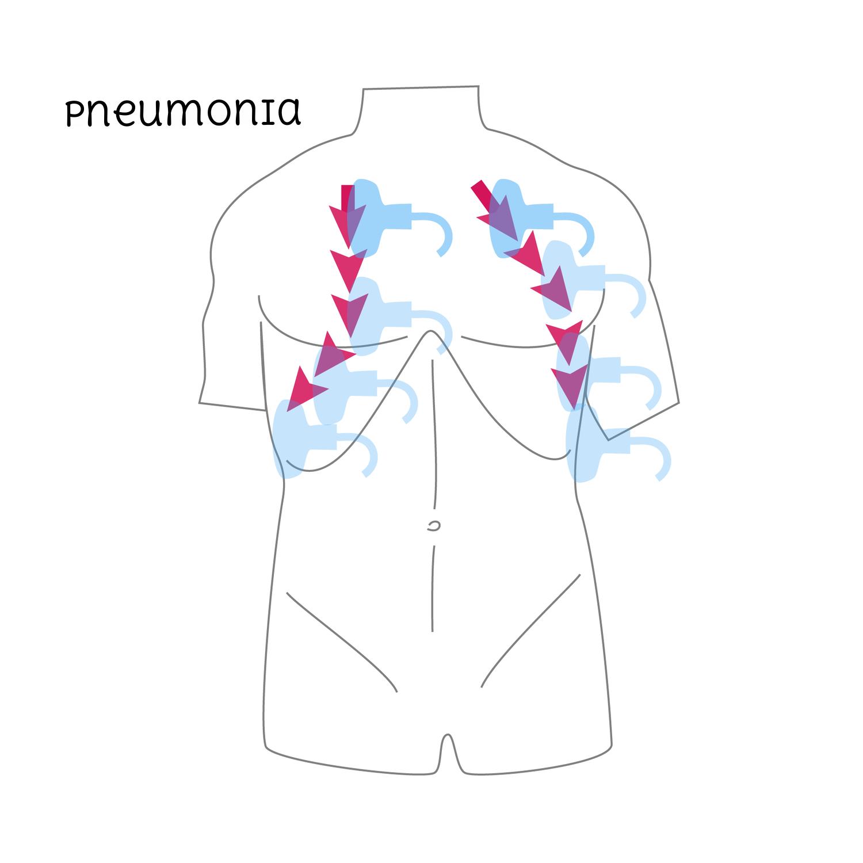Pneumonia-01.png