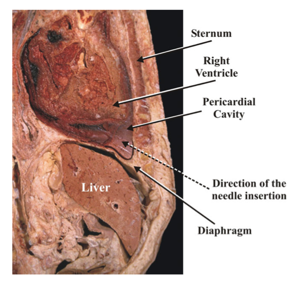 Sagittal cadaveric section revealing position of anterior nature of the heart.