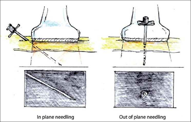 In plane versus out of plane technique.  From The International Journal of Shoulder Surgery.