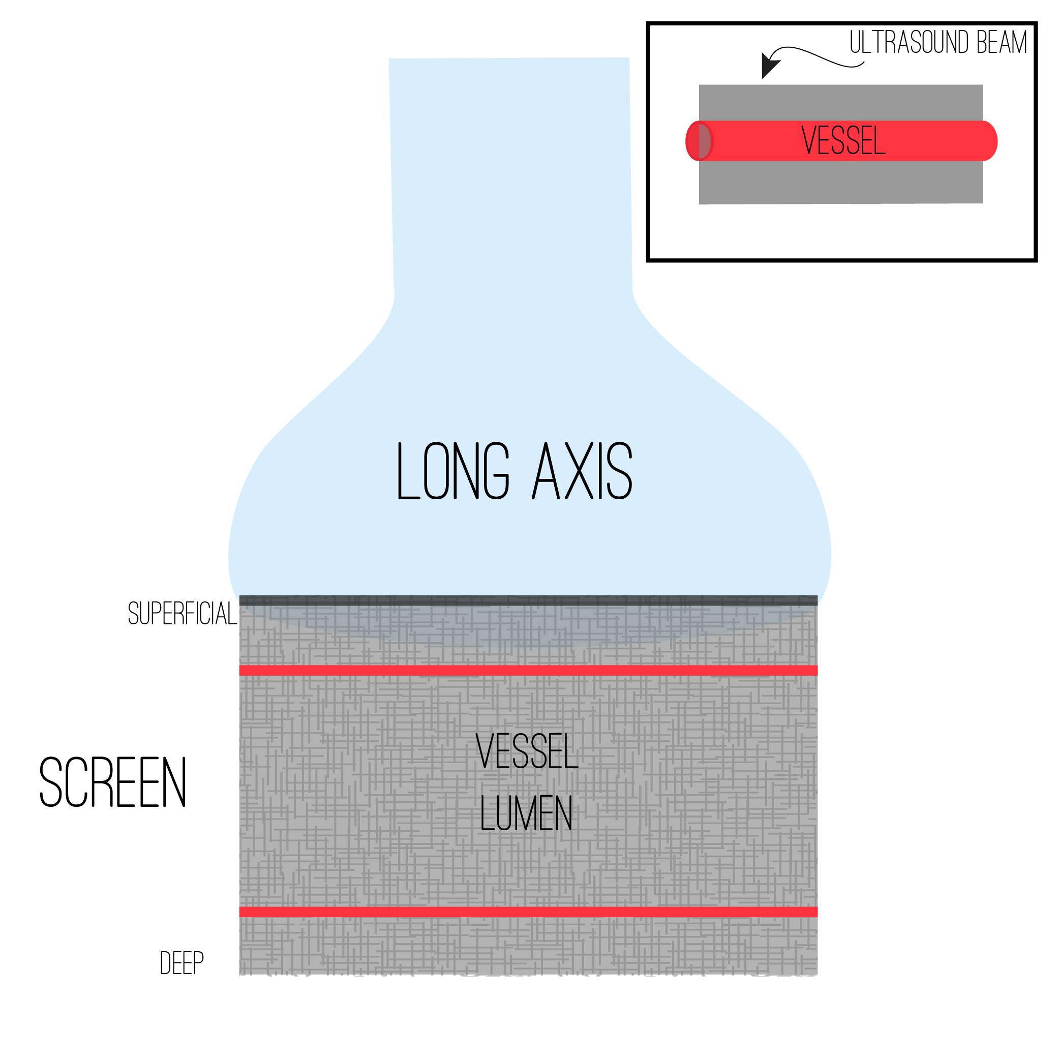 The long axis view slices your target longitudinally resulting usually in a tube-like structure.