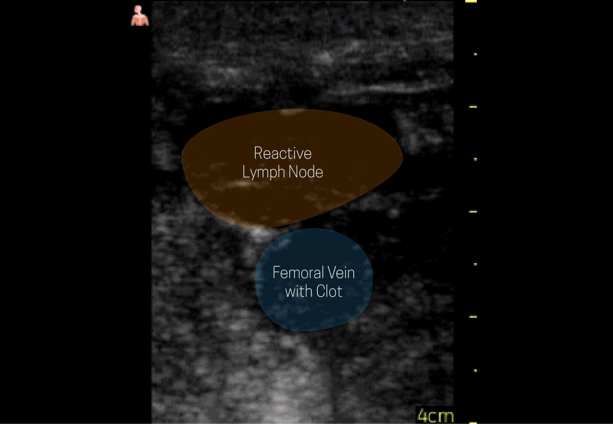 Structure identification from previous ultrasound views.