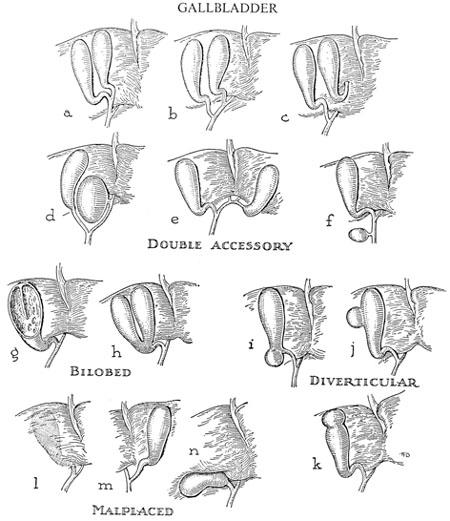 Variation on gallbladder location and shape.
