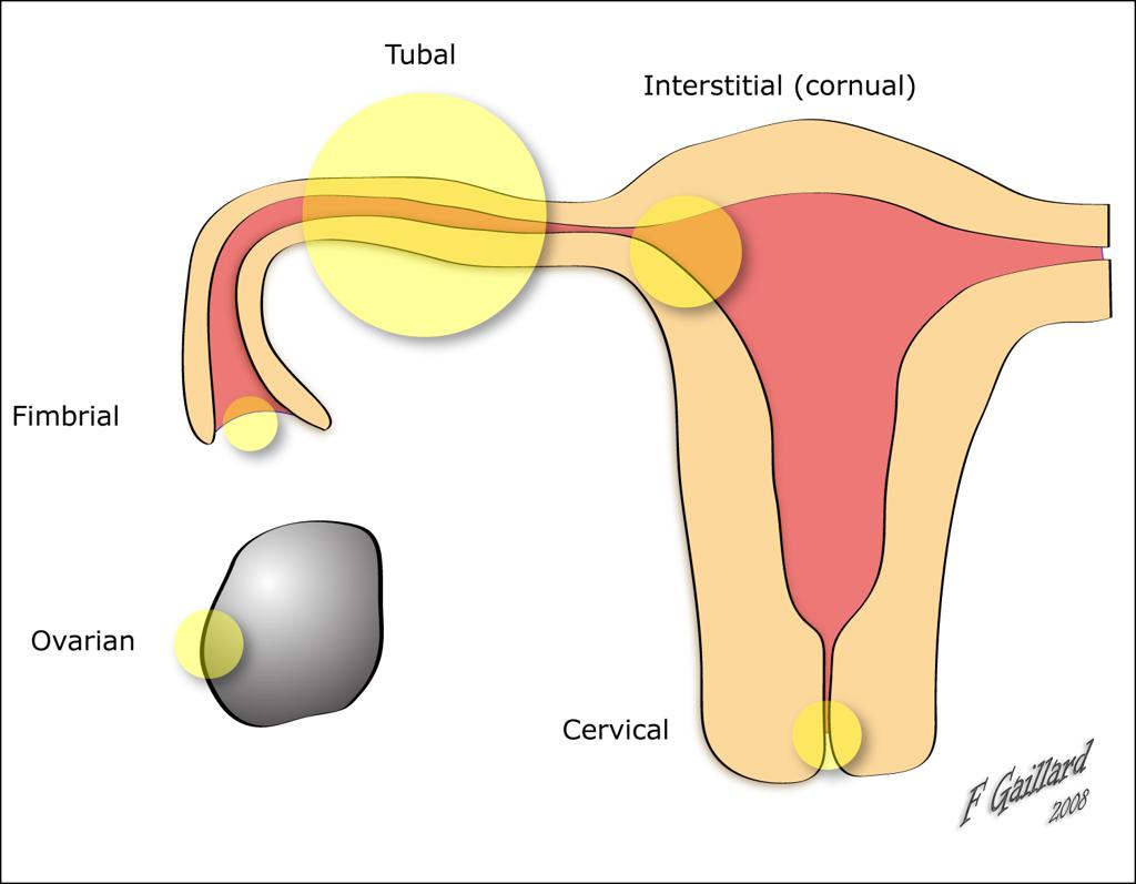 Most Common Locations of Ectopic Pregnancy