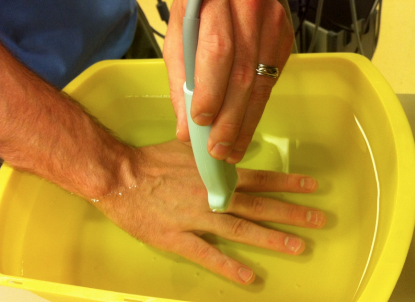 Water bath for small part evaluation. From  Introduction to Bedside Ultrasound