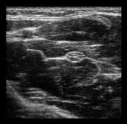 Transverse View of Median Nerve