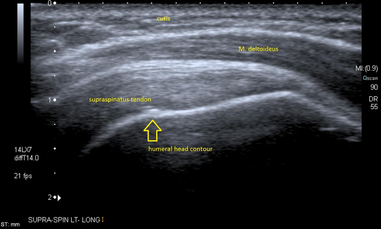Longitudinal View of Supraspinatus Tendon