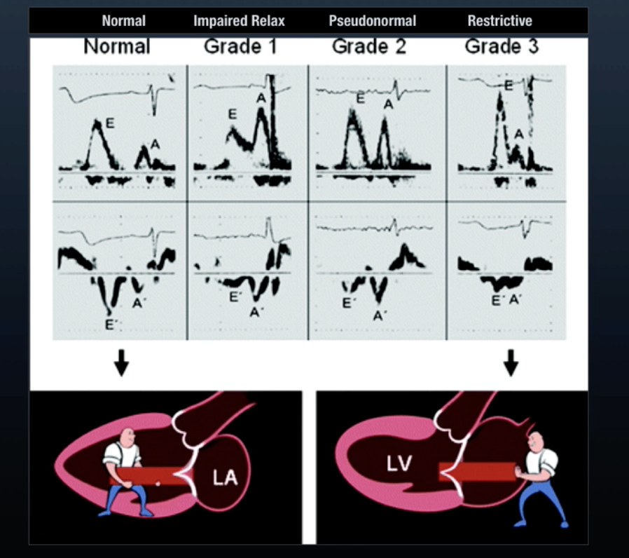 """The spectrum of diastolic dysfunction with mitral inflow velocity and tissue doppler velocity waveforms. You can also think of normal diastolic filling as a passive """"pulling"""" process and dysfunction leading to diastolic filling becoming a 'pushing' process.  From ULA Diastology"""