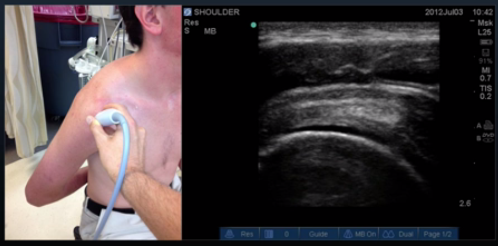 Proper Probe Location for Supraspinatus Long Axis View