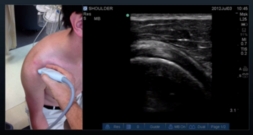 Proper Probe Location for Subscapularis Long Axis View