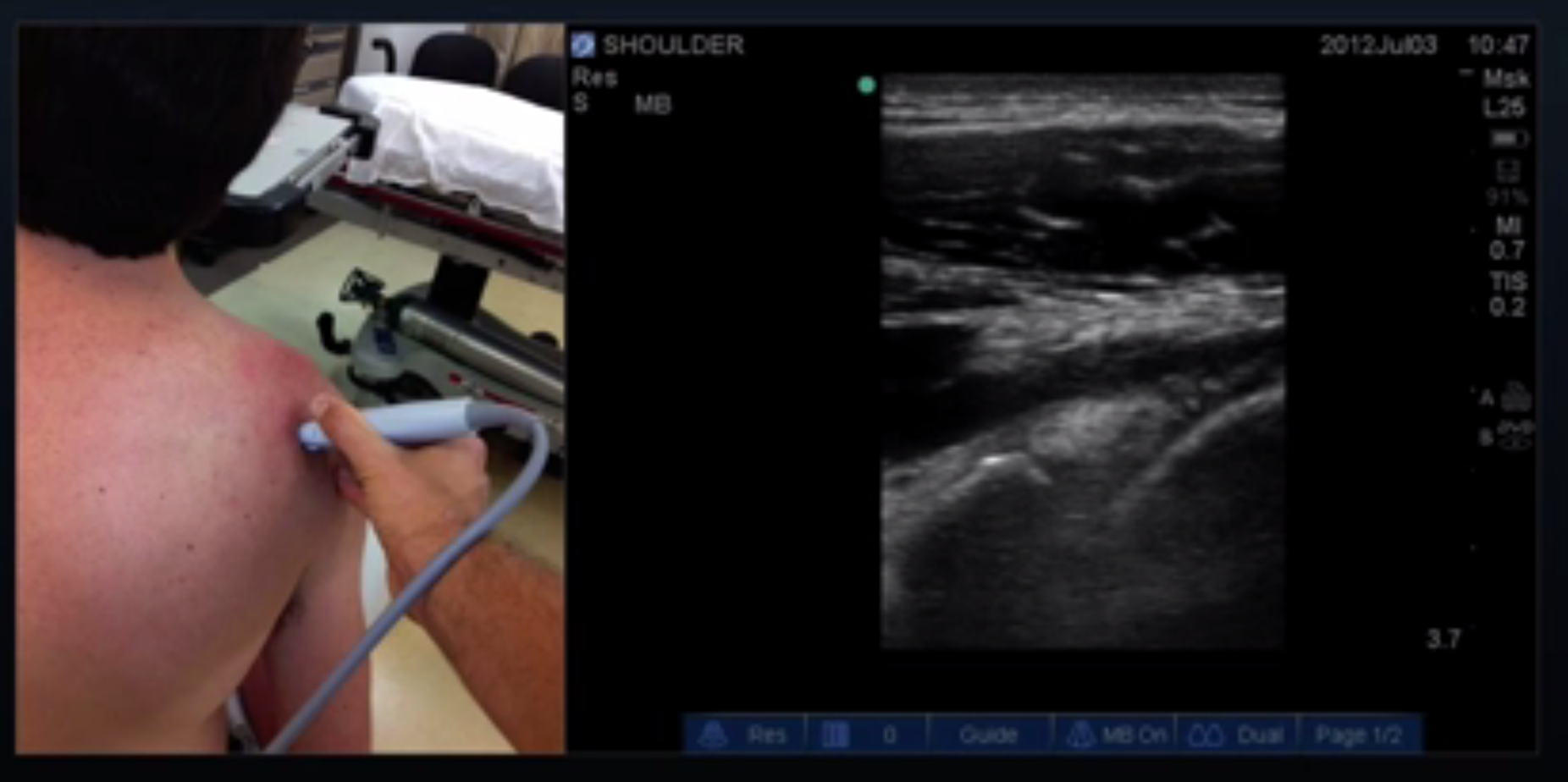 Proper Probe Location for Infraspinatus Tendon Long Axis View