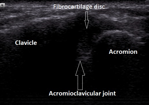 Anatomy of the AC Joint  From Ultrasound assessment of most frequent shoulder disorders.