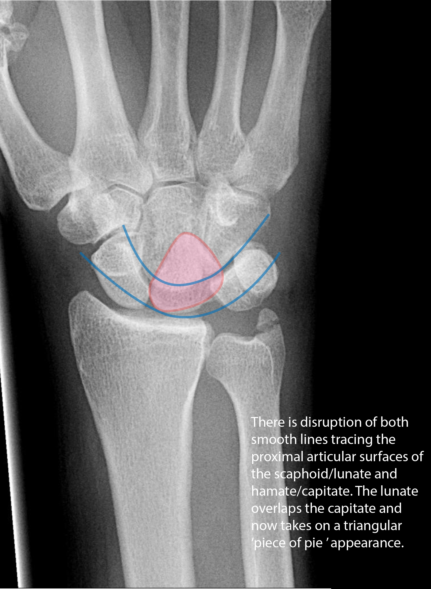 Lunate Dislocation on AP Radiograph